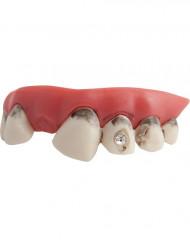 Schmutzige Zähne mit Ziersteinen