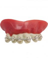 Zahnspangen-Gebiss