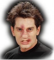 Prothese gebrochene Nase