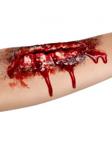 Offene Wunde am Unterarm